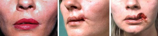traitement homéopathique