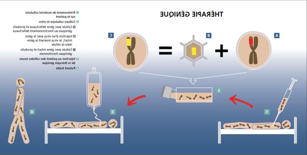 traitement de varices montreal