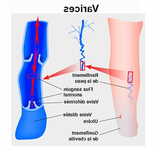 traitement pour varices jambes