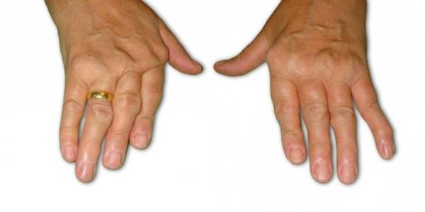 crise arthrose bas du dos