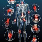 Comparatif Douleur articulaire fibromyalgie | Flexa Plus Optima - Avis des clients