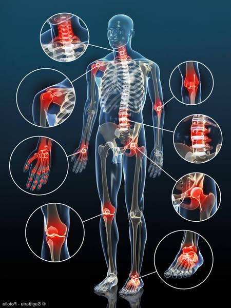 arthrose genou reconnu comme handicap