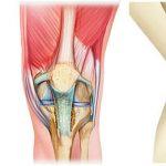 Classement Arthrose du genou chez les jeunes | Flexa Plus Optima - Test & avis