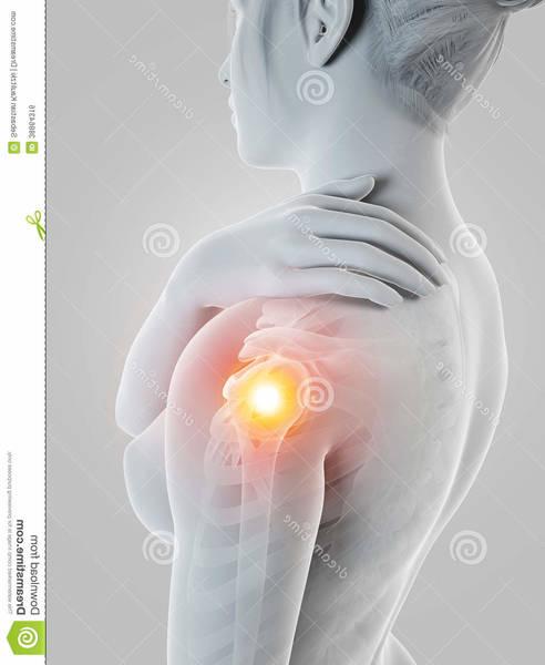 arthrose hanche comment soigner