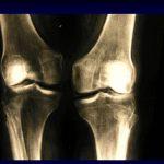 Comparateur Douleur articulation du pouce de la main | Flexa Plus Optima - Où l'acheter ?