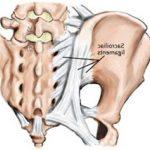 Classement Arthrose hanche genou | Flexa Plus Optima - Avis des utilisateurs