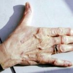 Acheter Arthrose hanche stade 2 | Flexa Plus Optima - Test & recommandation