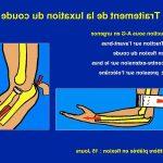 Acheter Frequence crise arthrose | Flexa Plus Optima - Qualité Prix