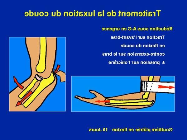 arthrose hanche pubalgie