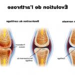Découvrir Arthrose cheville et genou | Flexa Plus Optima - Avis & prix