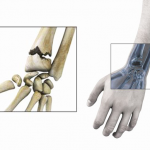 Classement Douleur articulation en haut de la cuisse | Flexa Plus Optima - Avis des forums