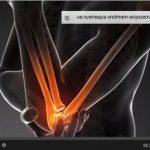 Découvrir Articulation derriere le genou | Flexa Plus Optima - Où l'acheter ?