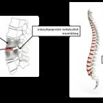 Comparateur Arthrose pied gros orteil | Flexa Plus Optima - Avis des utilisateurs