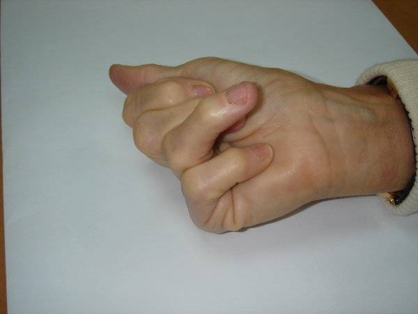 douleur articulaire phalange