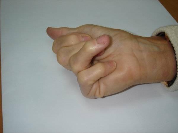 bilan arthrose hanche