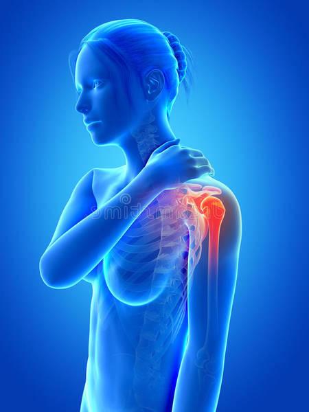 arthrose du coude radiographie
