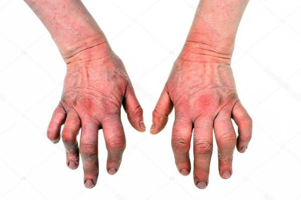 crise arthrose generalisee