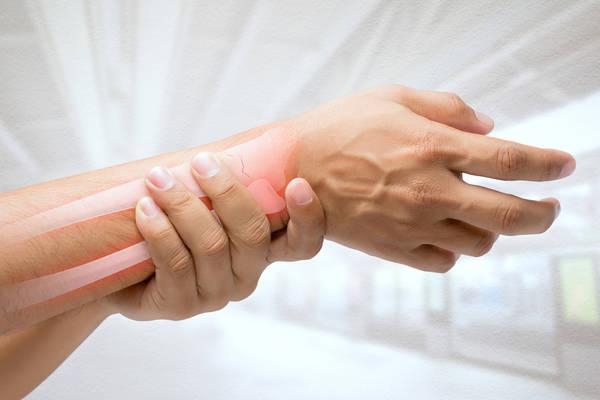 crise d arthrose phytothérapie