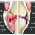 Comparatif Prévenir l'arthrose cervicale | Flexa Plus Optima - Avis des testeurs