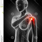 Comparateur Arthrose genou homeopathie | Flexa Plus Optima - Avis des forums