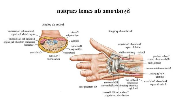 arthrose genou infiltration gel