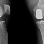 Classement Arthrose cheville forum | Flexa Plus Optima - Avis des experts