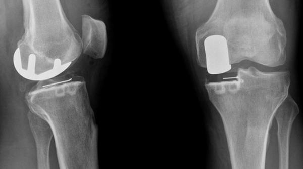 remede arthrose coude