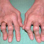 Comparer Arthrose et cheville gonflée | Flexa Plus Optima - Avis & prix