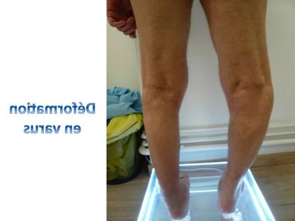 arthrose hanche du homme