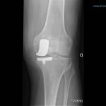 Découvrir Poussée darthrose traitement naturel | Flexa Plus Optima - Test complet