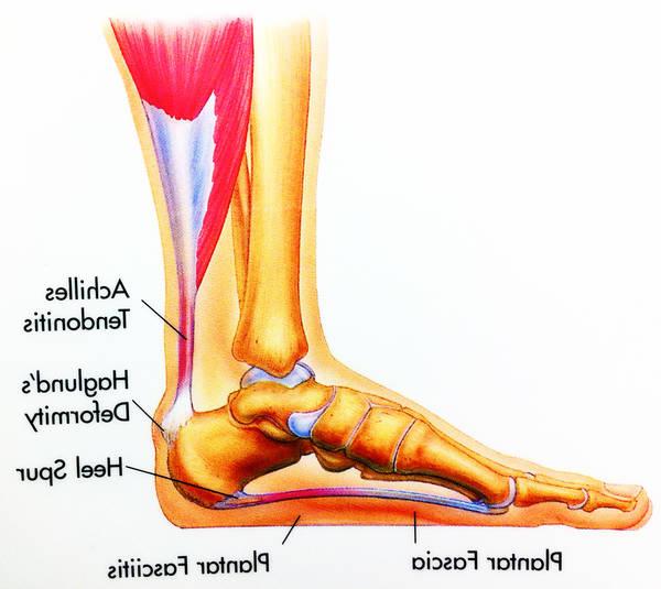 arthrose du coude
