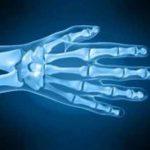 Comparateur Douleur articulaire laitage | Flexa Plus Optima - Avis des utilisateurs
