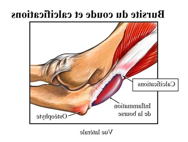 comment soulager l'arthrose et l'arthrite