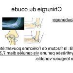 Classement Crise arthrose soulager | Flexa Plus Optima - Avis & prix