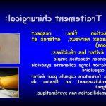 Comparatif Flexa Plus Optima - Douleur articulaire acide urique |  Qualité Prix