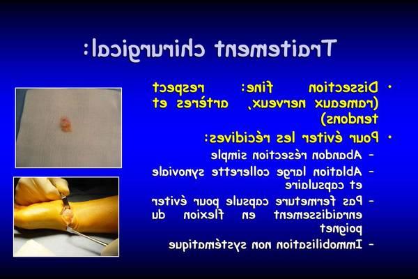 arthrose ou hernie discale
