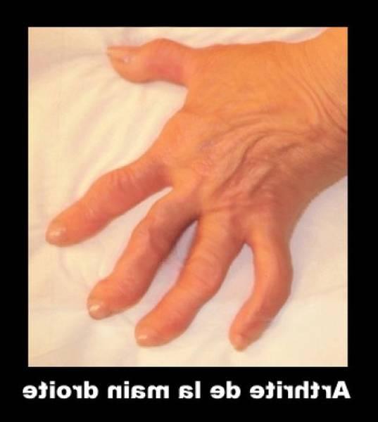 arthrose cervicale oeil