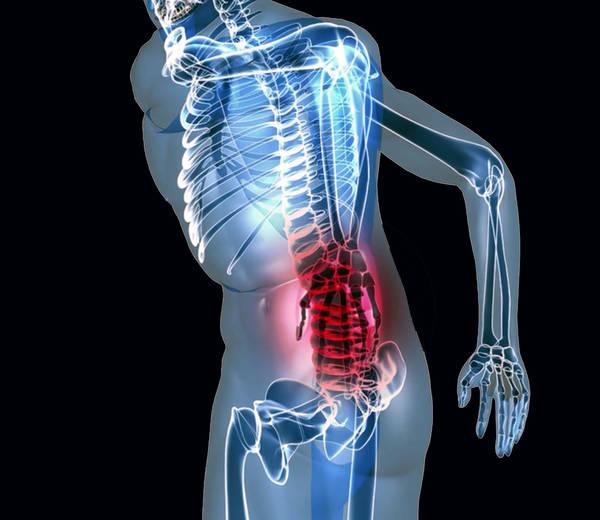 arthrose du bassin humain
