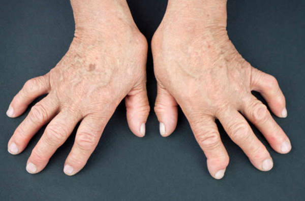 crise arthrose gros orteil