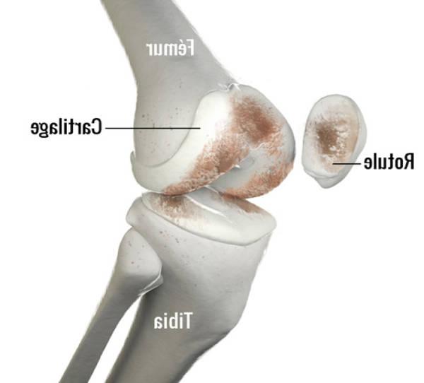 arthrose hanche sujet jeune