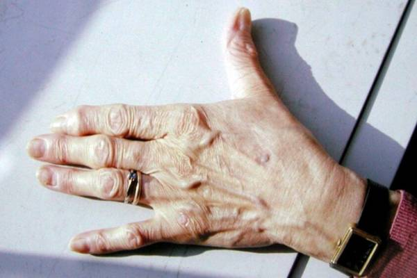 arthrose genoux jeune