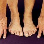 Comparatif Flexa Plus Optima - Soulager arthrose homme massage | Avis des experts
