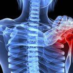 Découvrir Arthrose hanche 25 ans | Flexa Plus Optima - Test & recommandation