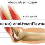 Classement Arthrose cervicale médecine chinoise | Flexa Plus Optima - Test & avis