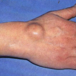 Classement Flexa Plus Optima - Crise arthrose genou traitement | Avis des testeurs