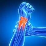 Acheter Arthrose dans les genoux symptomes | Flexa Plus Optima - Qualité Prix