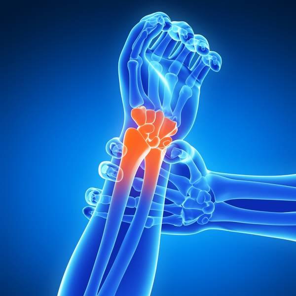 arthrose cervicale quels exercices pour la combattre