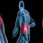 Comparateur Arthrose hanche douleur bas ventre | Flexa Plus Optima - Avis des testeurs