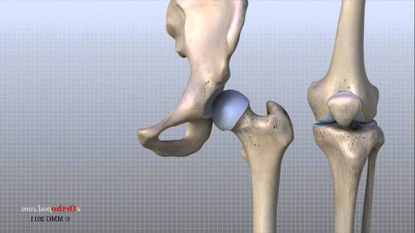 arthrose cervicale gluten