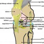 Classement Arthrose hanche signes radiologiques | Flexa Plus Optima - Test complet